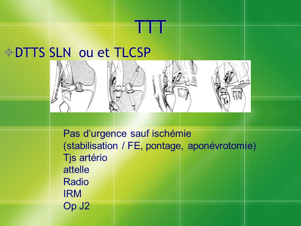 TTT DTTS SLN ou et TLCSP Pas d'urgence sauf ischémie
