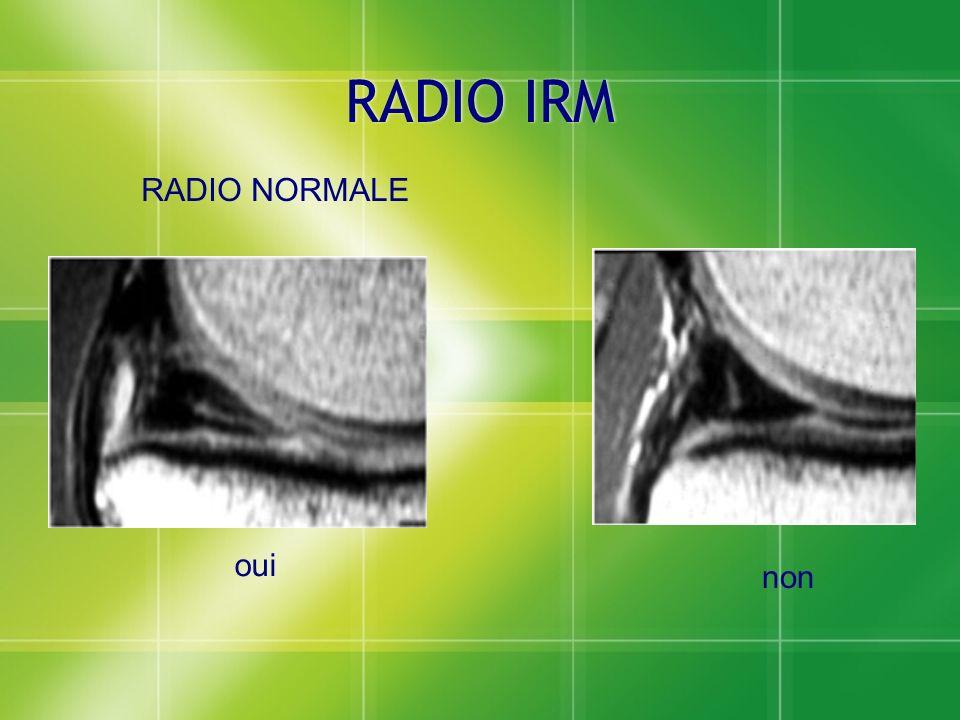 RADIO IRM RADIO NORMALE oui non