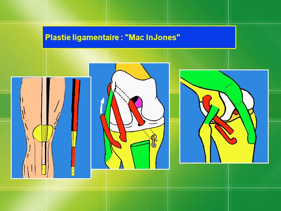 Plastie ligamentaire : Mac InJones