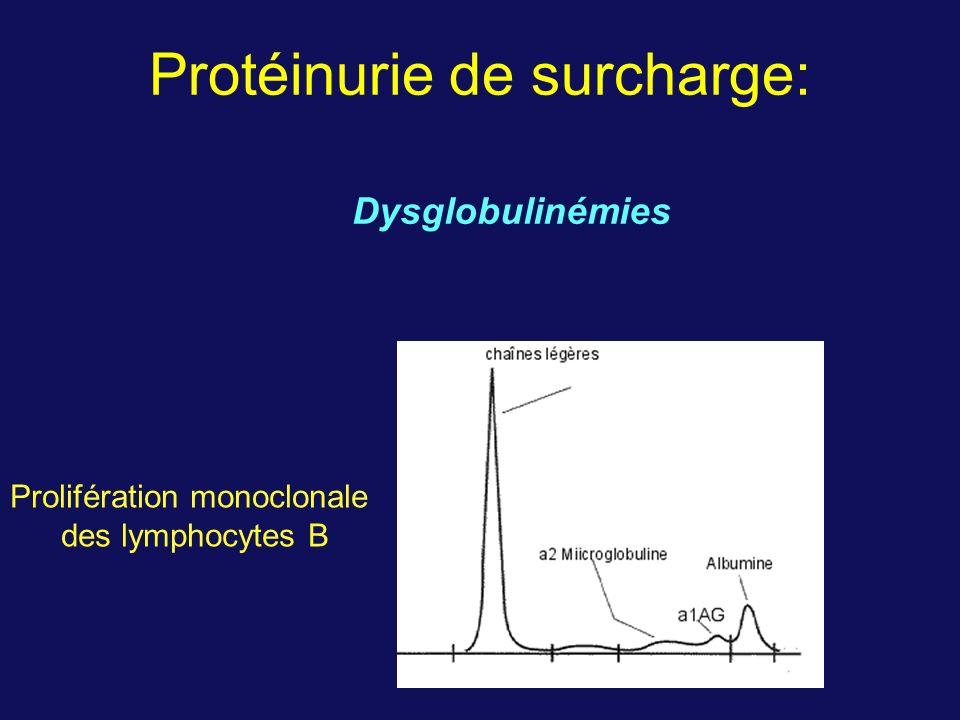 Protéinurie de surcharge: