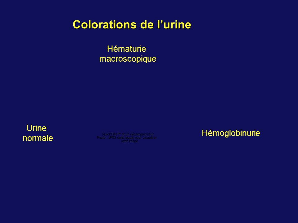 Colorations de l'urine