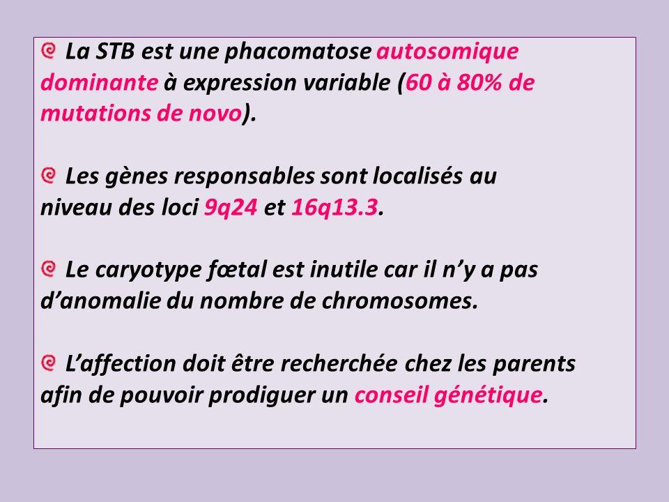 La STB est une phacomatose autosomique