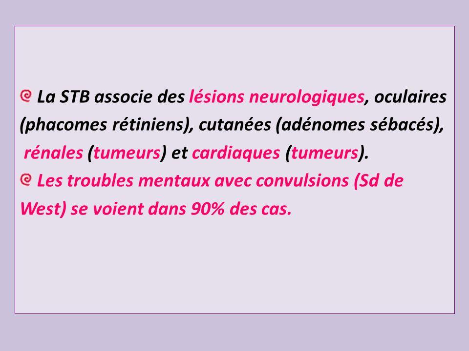 La STB associe des lésions neurologiques, oculaires