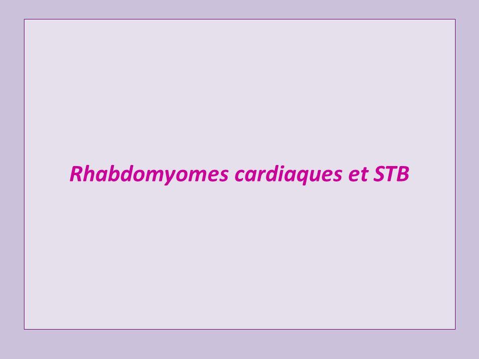 Rhabdomyomes cardiaques et STB