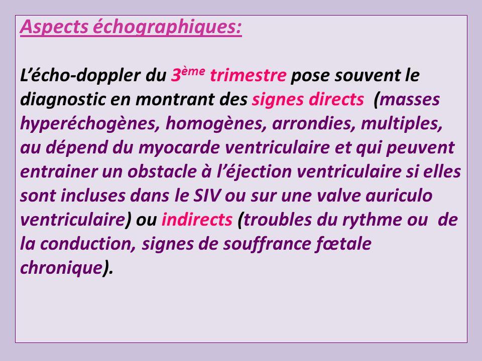 Aspects échographiques: