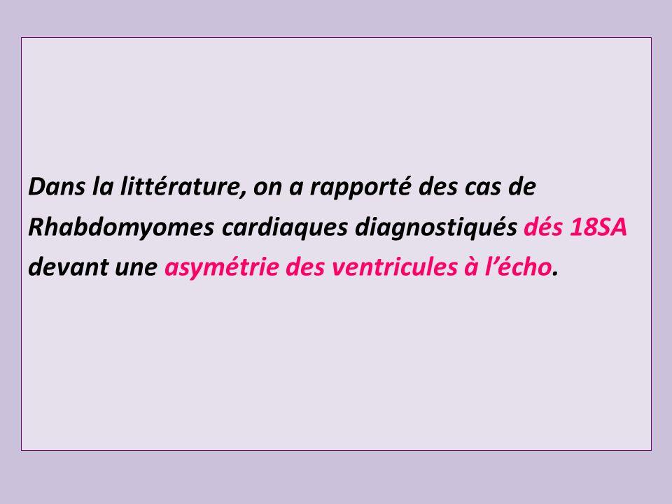 Dans la littérature, on a rapporté des cas de Rhabdomyomes cardiaques diagnostiqués dés 18SA devant une asymétrie des ventricules à l'écho.