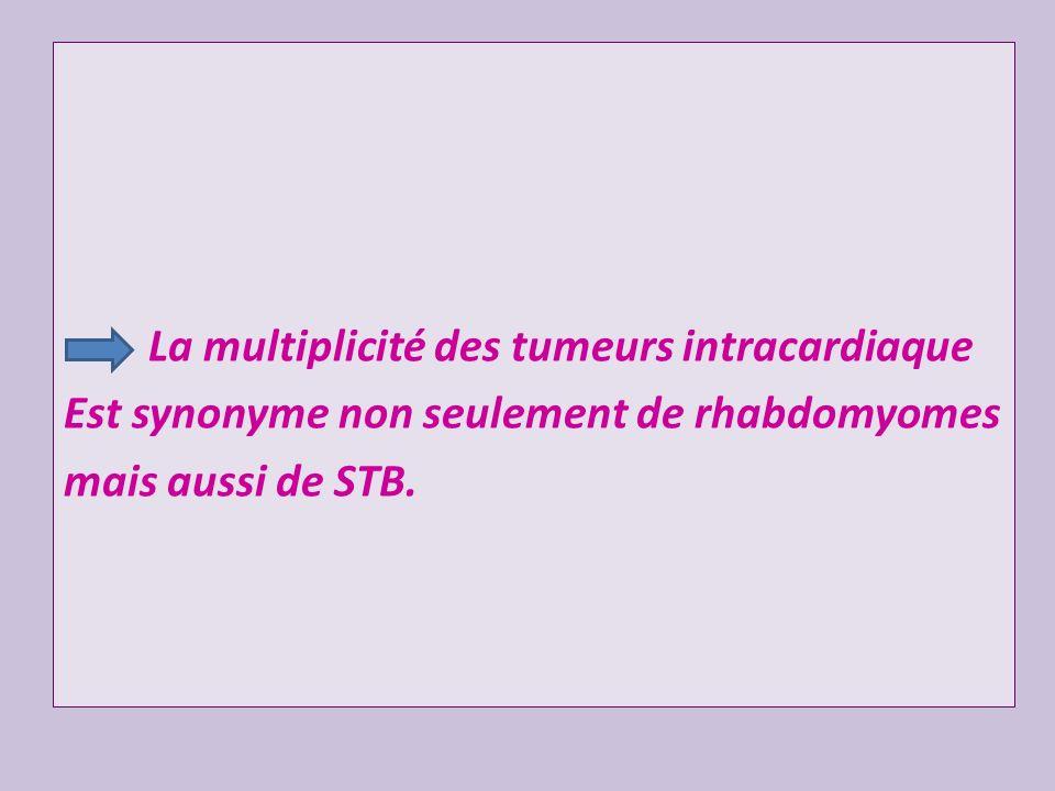 La multiplicité des tumeurs intracardiaque Est synonyme non seulement de rhabdomyomes mais aussi de STB.