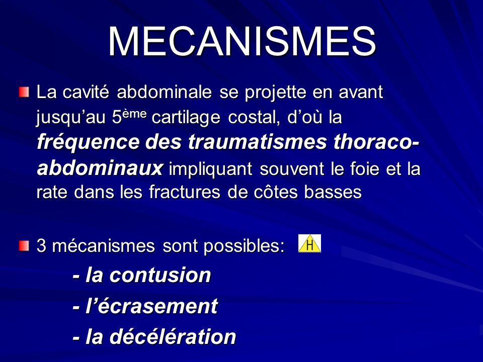 MECANISMES - la contusion - l'écrasement - la décélération