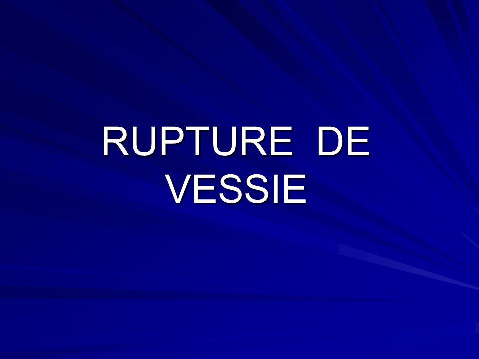 RUPTURE DE VESSIE
