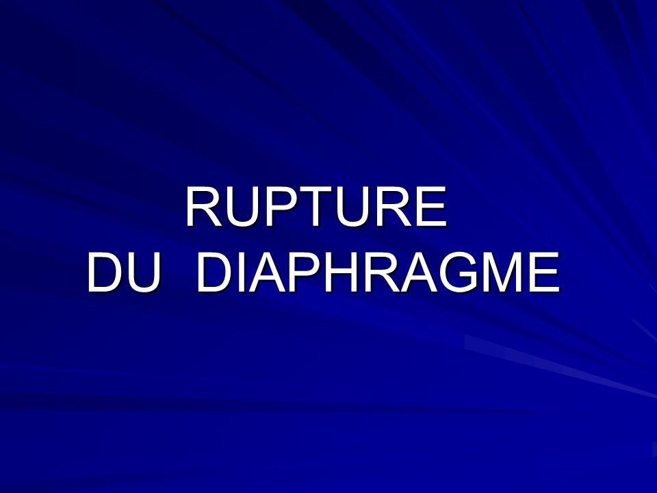 RUPTURE DU DIAPHRAGME