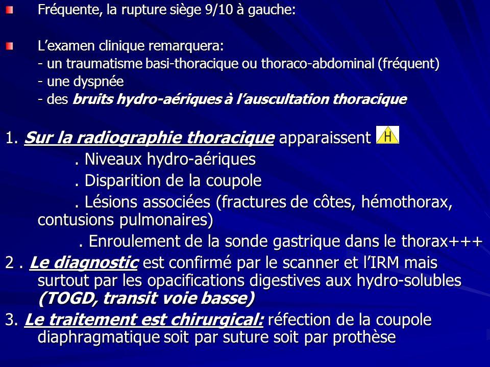 1. Sur la radiographie thoracique apparaissent