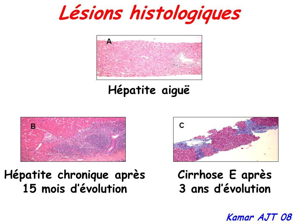 Lésions histologiques Hépatite chronique après