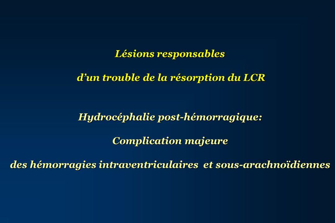 d'un trouble de la résorption du LCR