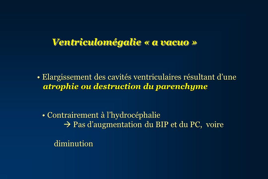 Ventriculomégalie « a vacuo »