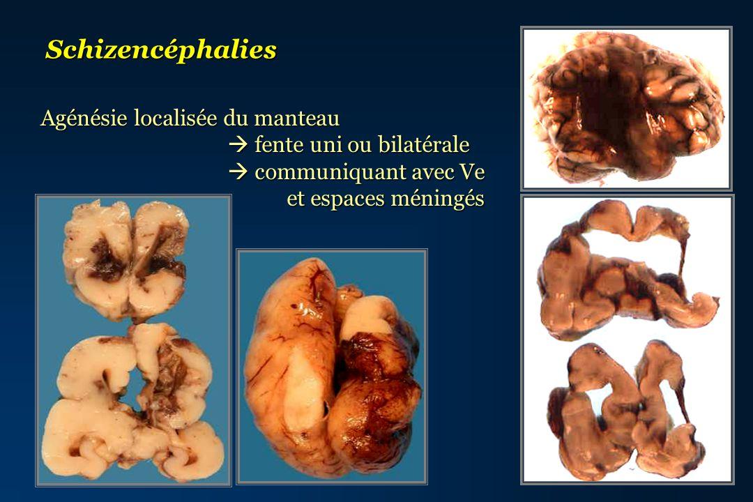 Schizencéphalies Agénésie localisée du manteau