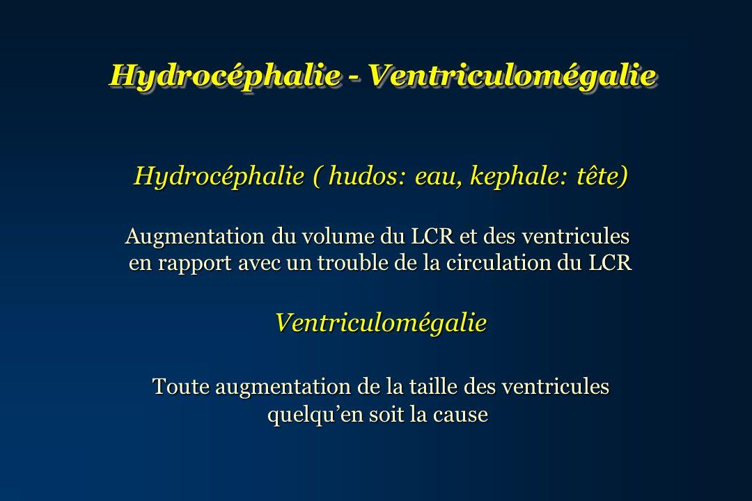 Hydrocéphalie - Ventriculomégalie