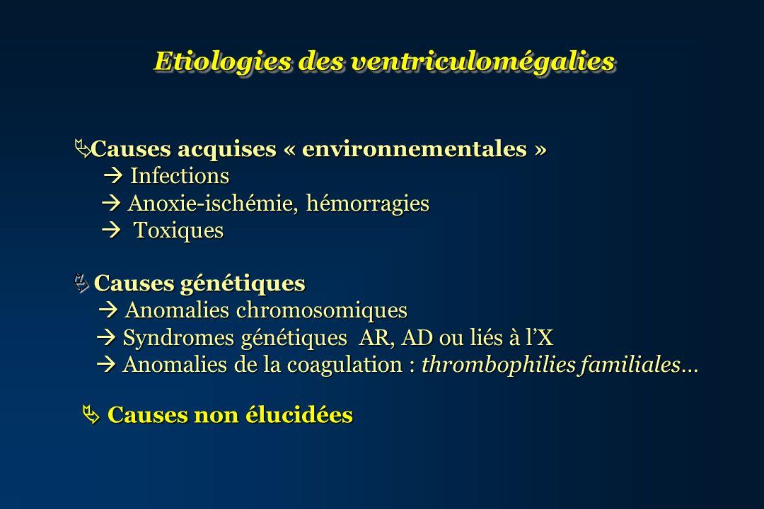 Etiologies des ventriculomégalies