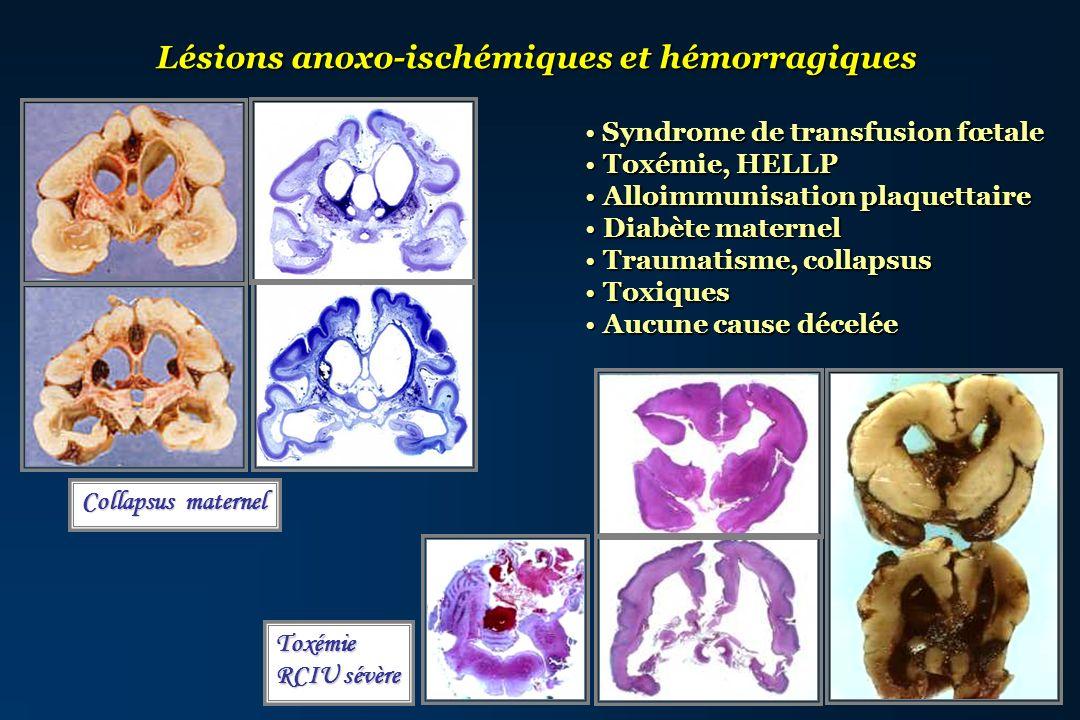 Lésions anoxo-ischémiques et hémorragiques