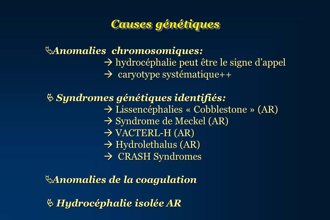 Causes génétiques Anomalies chromosomiques: