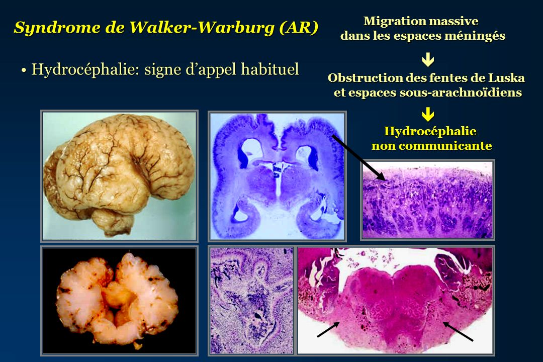 Syndrome de Walker-Warburg (AR)