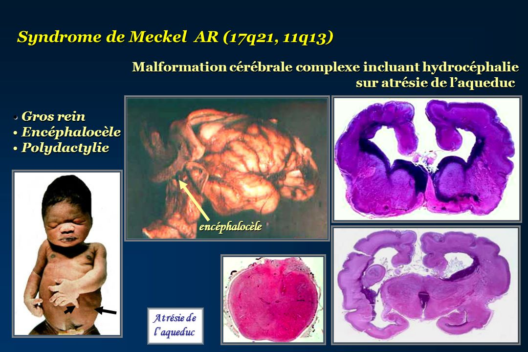 Syndrome de Meckel AR (17q21, 11q13)