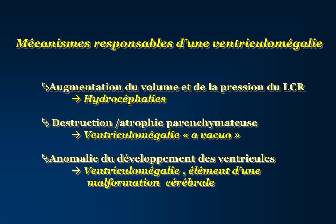 Mécanismes responsables d'une ventriculomégalie