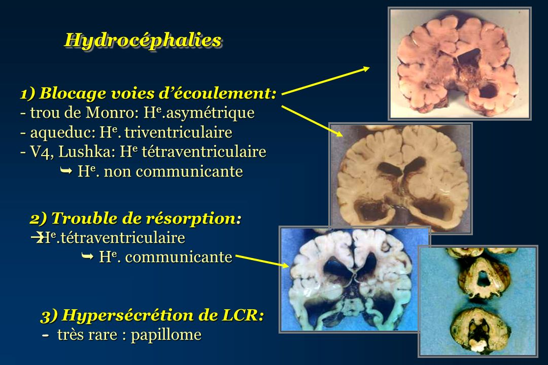 Hydrocéphalies 1) Blocage voies d'écoulement: