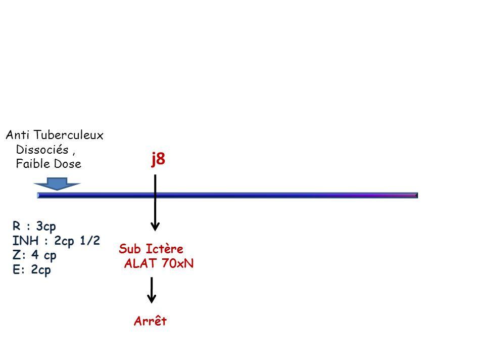 Anti Tuberculeux Dissociés , Faible Dose R : 3cp INH : 2cp 1/2 Z: 4 cp