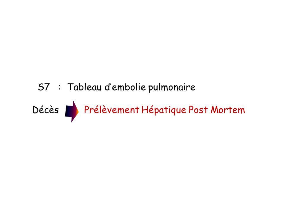 S7 : Tableau d'embolie pulmonaire