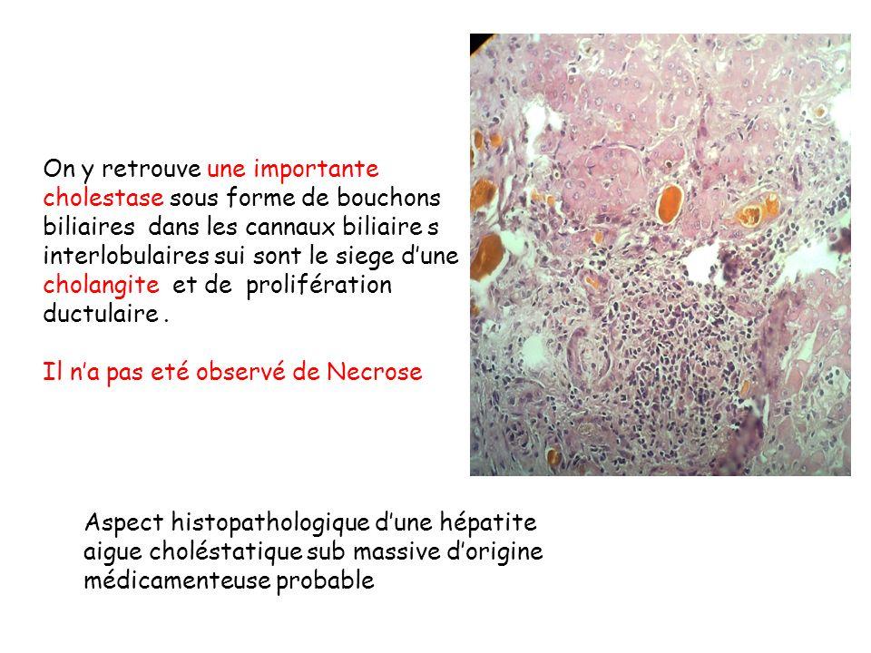 On y retrouve une importante cholestase sous forme de bouchons biliaires dans les cannaux biliaire s interlobulaires sui sont le siege d'une cholangite et de prolifération ductulaire .
