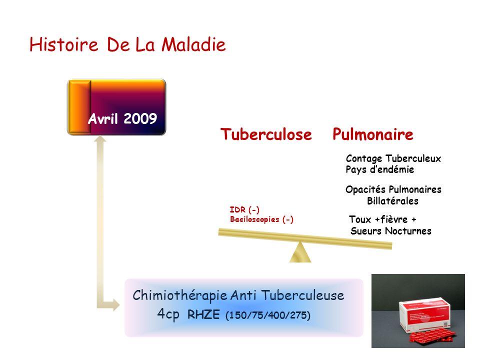 Histoire De La Maladie 4cp RHZE (150/75/400/275) Avril 2009