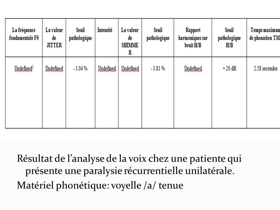 Résultat de l'analyse de la voix chez une patiente qui présente une paralysie récurrentielle unilatérale.