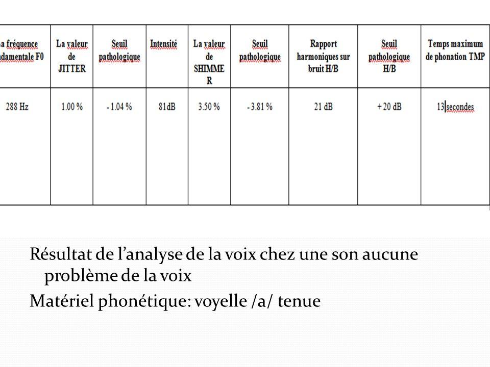 Résultat de l'analyse de la voix chez une son aucune problème de la voix Matériel phonétique: voyelle /a/ tenue