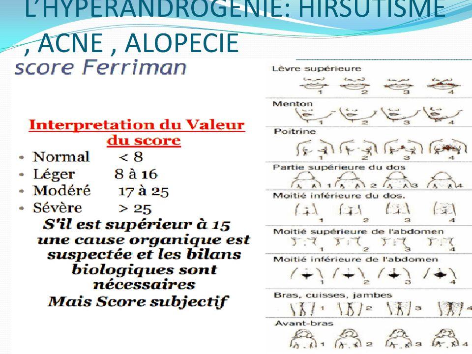 L'HYPERANDROGENIE: HIRSUTISME , ACNE , ALOPECIE