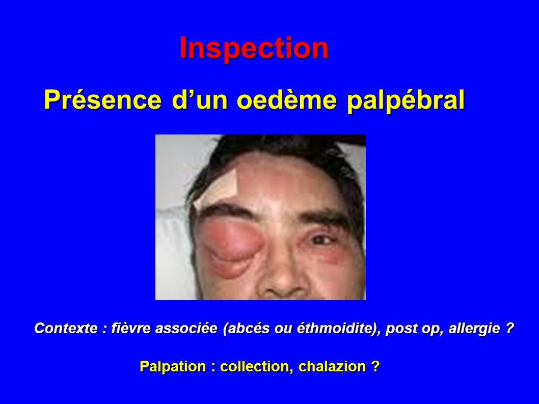 Présence d'un oedème palpébral
