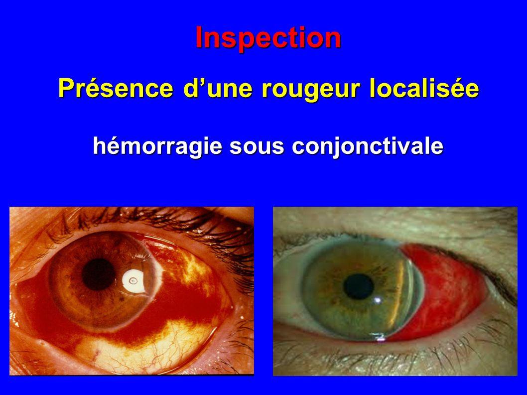 Présence d'une rougeur localisée hémorragie sous conjonctivale