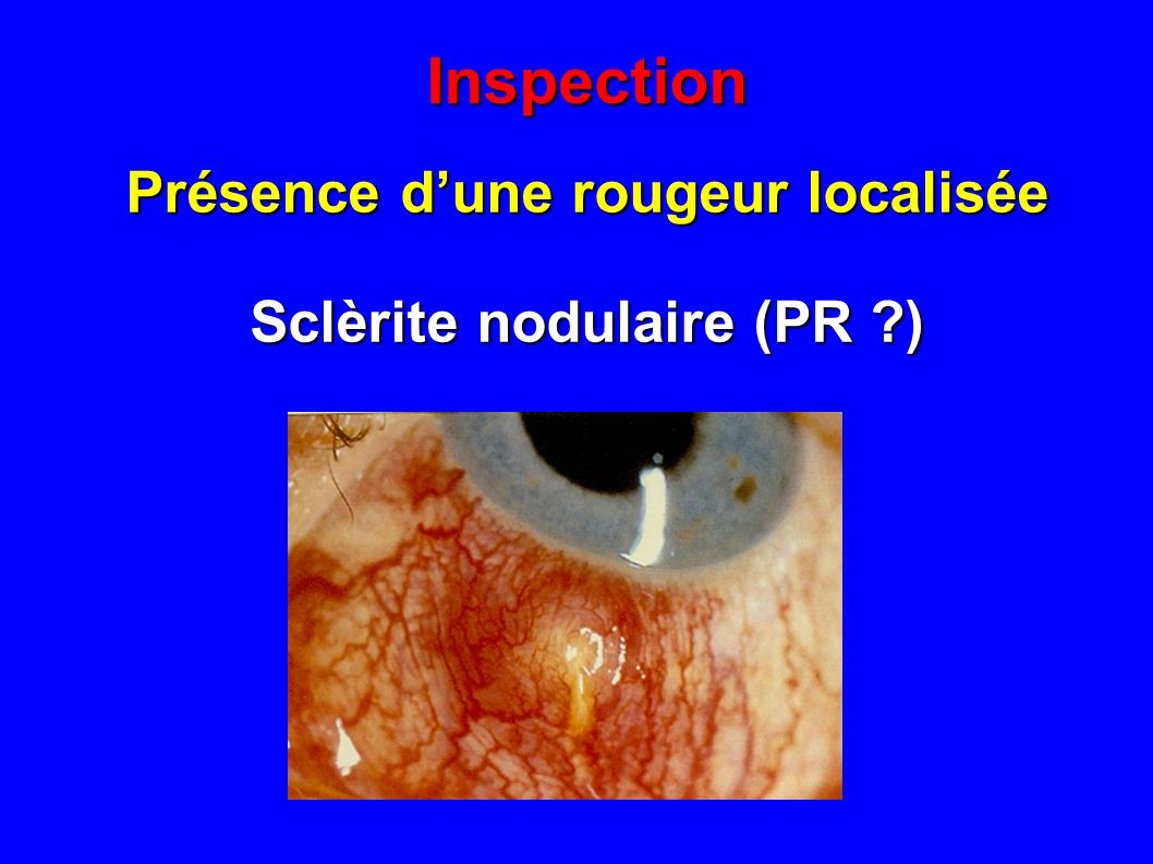 Présence d'une rougeur localisée Sclèrite nodulaire (PR )