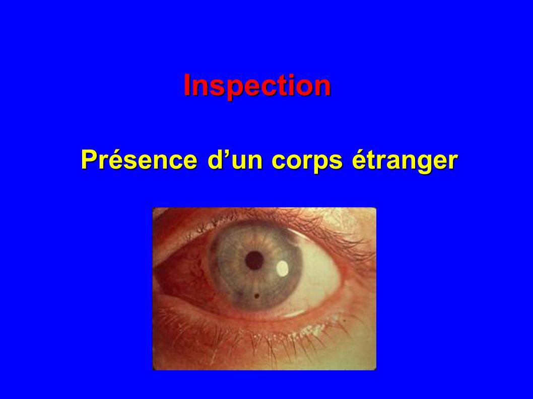 Inspection Présence d'un corps étranger