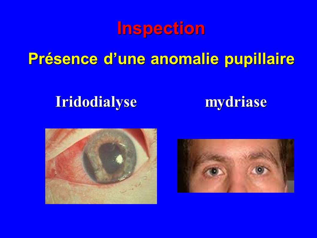 Présence d'une anomalie pupillaire Iridodialyse mydriase