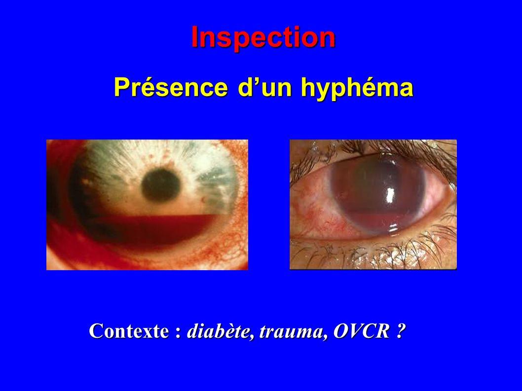 Inspection Présence d'un hyphéma Contexte : diabète, trauma, OVCR