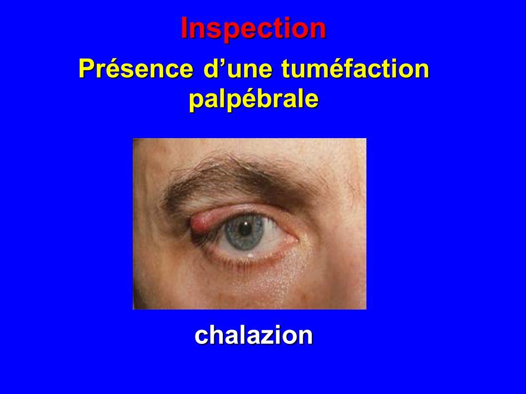 Présence d'une tuméfaction palpébrale