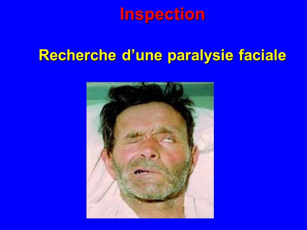 Recherche d'une paralysie faciale