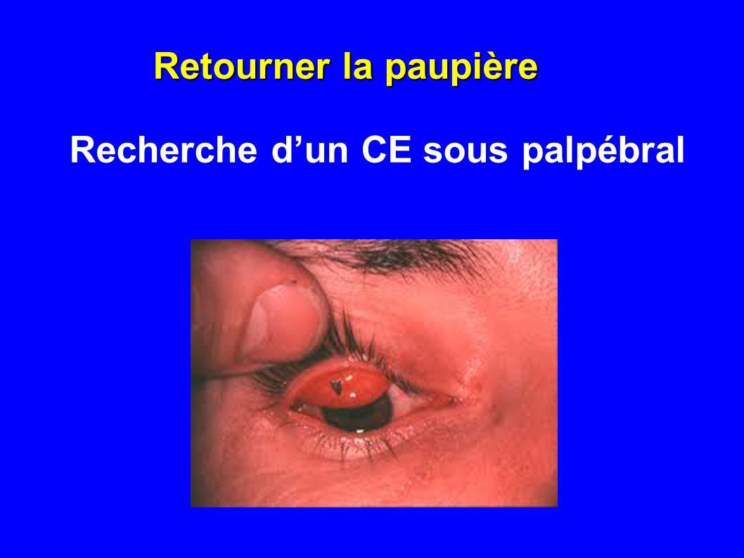 Retourner la paupière Recherche d'un CE sous palpébral
