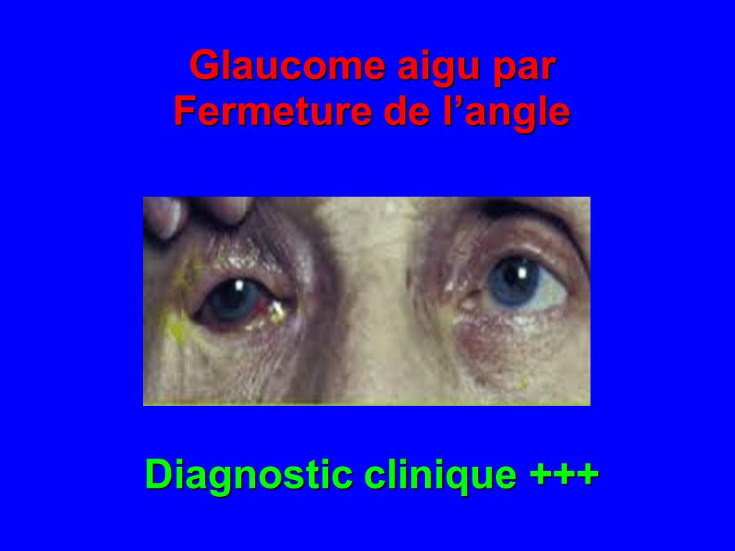 Diagnostic clinique +++