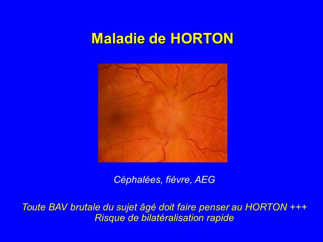 Maladie de HORTON Céphalées, fièvre, AEG
