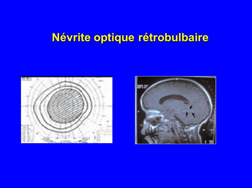Névrite optique rétrobulbaire