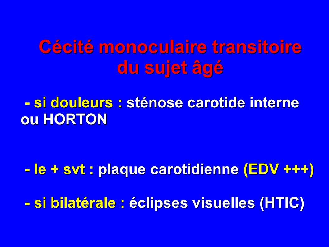 Cécité monoculaire transitoire