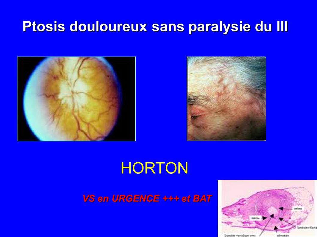 HORTON Ptosis douloureux sans paralysie du III