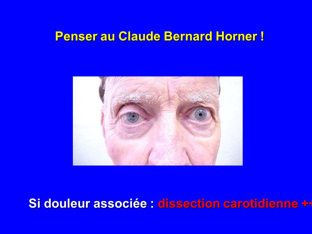 Penser au Claude Bernard Horner !