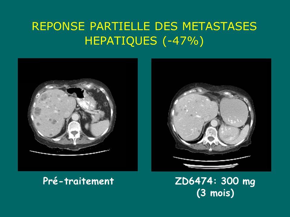 REPONSE PARTIELLE DES METASTASES HEPATIQUES (-47%)